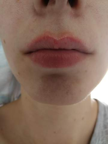 Neurodermitis lippe