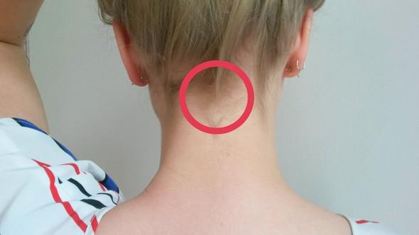 Nacken - (Kopf, Knochen, Nacken)