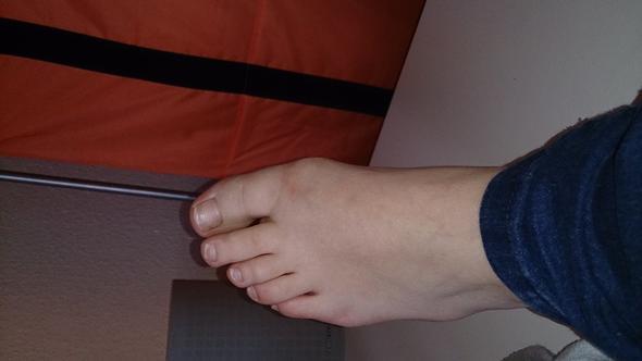 Bild 3 - (Schmerzen, Orthopädie, Zeh)