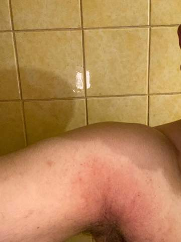 Achsel Hautausschlag was könnte das sein?