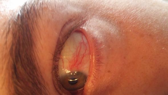 Woher kommen die Adern bzw. Blutfleck am Auge?