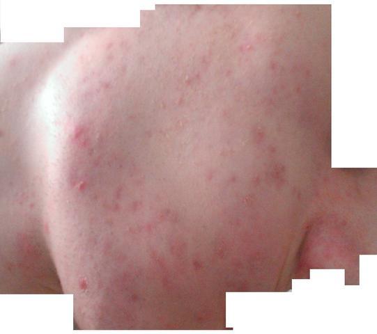 Geröteter Akneausschlag (Aktuell)  - (Haut, Pickel, Ausschlag)