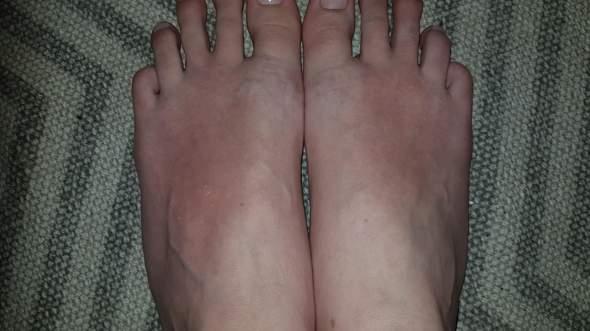 - (Füße, Hautprobleme)