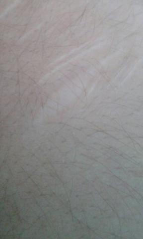 Alte Narben behandeln?