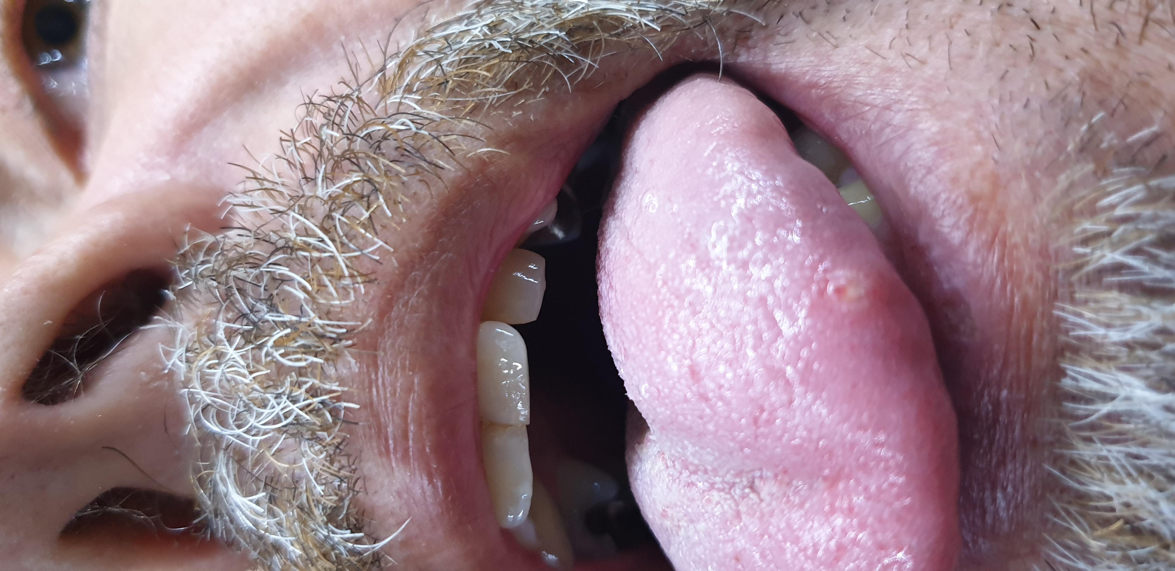 Aphten Zunge