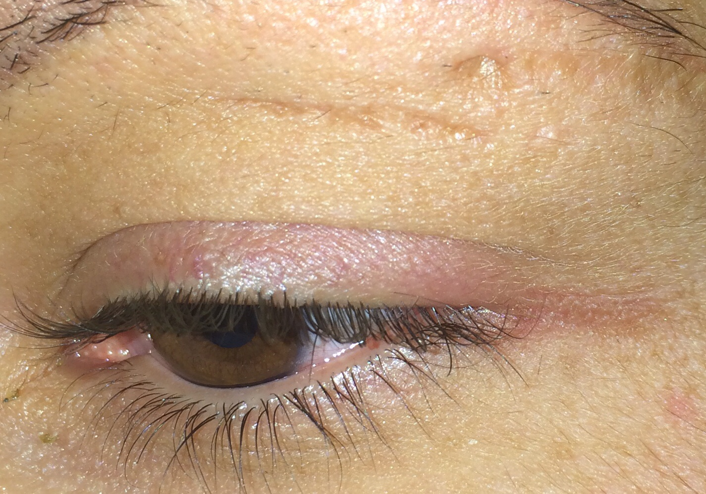Die Kephalgien schwill das Auge morgens eben an