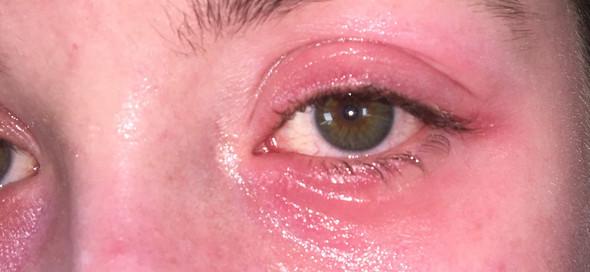 - (Entzündung, Augenentzündung, Bläschenbildung)