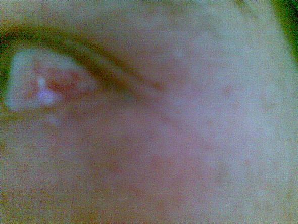 Angst vor Augenherpes - (Medikamente, Augen, Augenherpes)