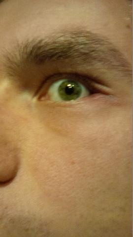 Auge - (Entzündung, Juckreiz, Augenlid)