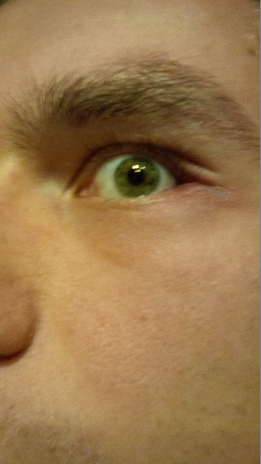 Augenlid links rot und juckt entsetzlich (Entzündung