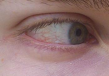 Rote Adern - (Augenheilkunde, Augentropfen, Trockene Augen)