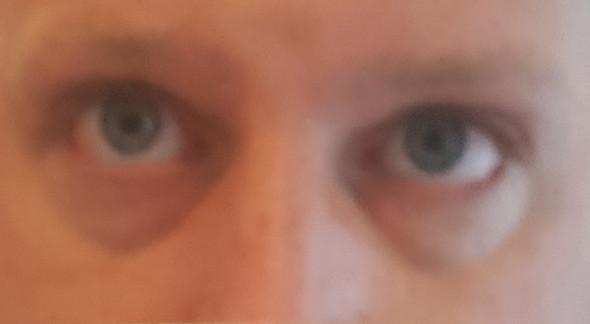 Augenschwellung, Nase immer zu, sowie Konzentrationschwierigkeiten, was soll ich noch machen?
