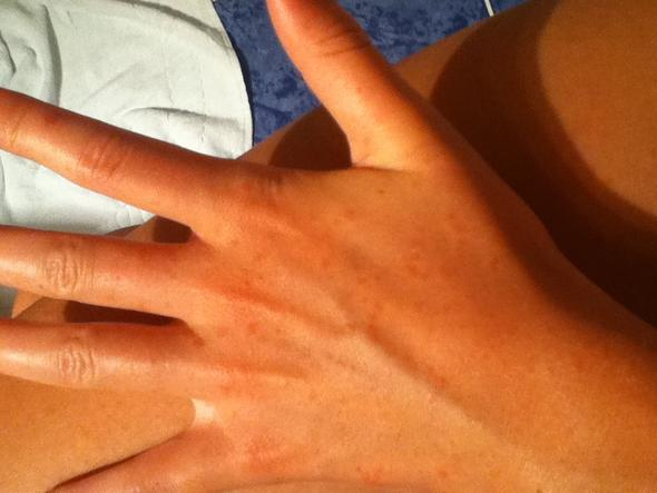 Die Hände  - (Haut, Allergie, Ausschlag)