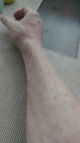 rechter Arm - (Ausschlag, Dermatologie)