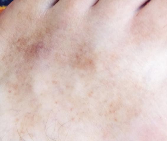 - (Haut, Füße, Allergie)