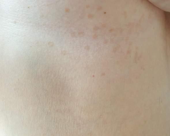 Ausschlag im Brustbereich was ist das?