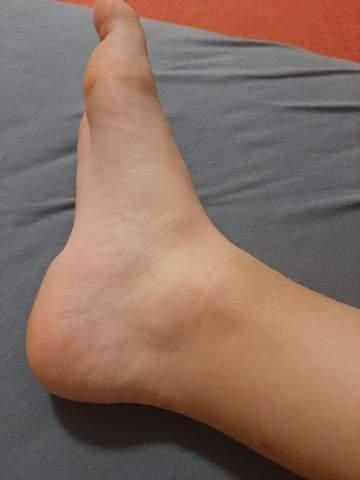 Geschwollen knöchel nach umknicken Fuß umgeknickt,