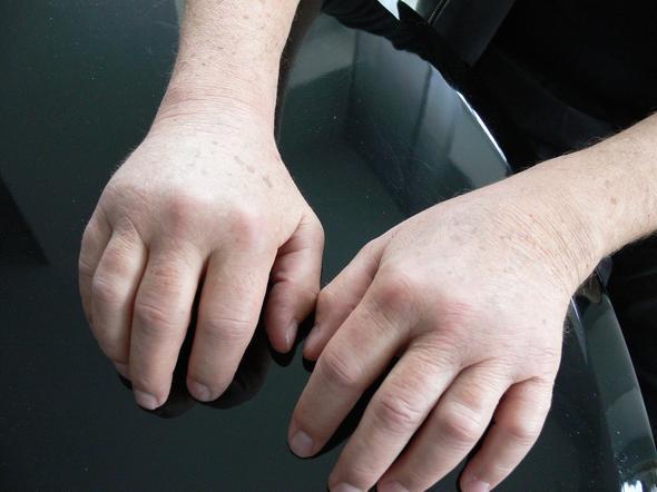 Beide Hände und alle Finger seit September 2013 stark und schmerzhaft  geschwollen