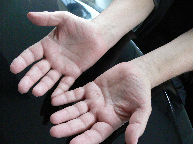 Beide Hände und alle Finger seit September 2013 stark und