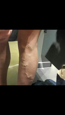 Beinschmerzen - (Schmerzen, Venen)