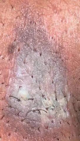 Benötige Hilfe. Warze Haut Weggeätzt - Genitalbereich?