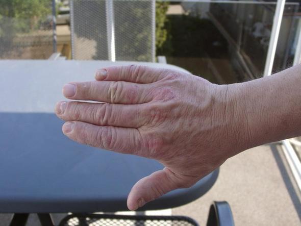 Handaussenseite - (Haut, Medikamente, betablocker)