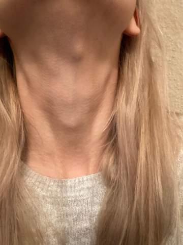 Beule am Hals , ist es nur eine Anschwellung des Lymphknotens?