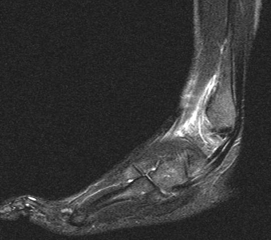 fuss01 - (Füße, Verletzung, MRT)