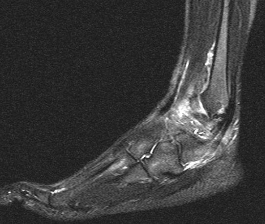 fuss2 - (Füße, Verletzung, MRT)