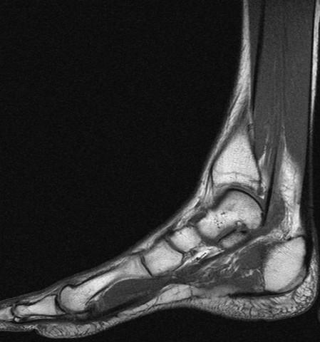 fuss3 - (Füße, Verletzung, MRT)