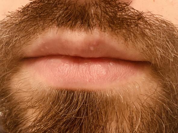 - (Herpesbläschen, Bläschen am Mund , Bläschen auf Lippe )