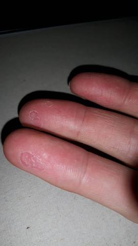 Blasen an den Fingern die nicht mehr weggehen?