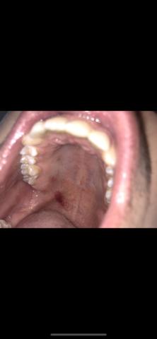 Bluterguss mit Zunge ausgelöst?