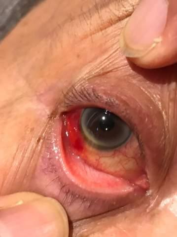 Blutrotes Auge, ab zum Augennotdienst oder harmlos?