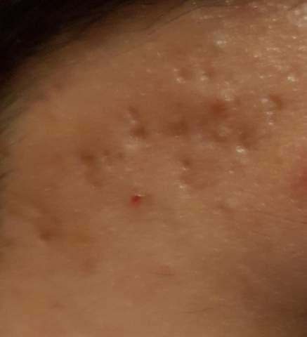 Brauche Hilfe, gibt es eine Creme für so eine Haut?