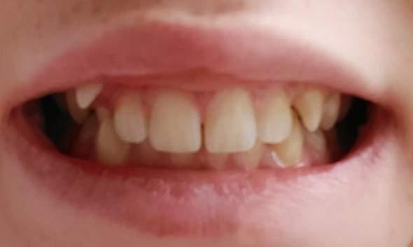 Brauche ich eine Zahnspange?Wenn ja welche?