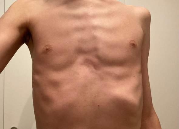 Brustkorb Deformation Trichterbrust Skolliose?
