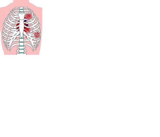 Brustkorb - (Schmerzen, Fitness, brustkorb)