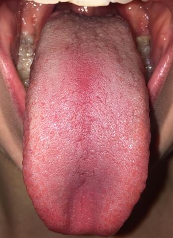 - (Gesundheit, Medizin, Zunge)