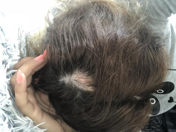 - (Haarausfall, Dellen im Kopf)
