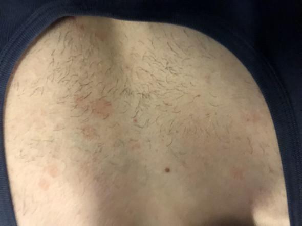 Deuten die roten Flecken auf eine ernste Krankheit?