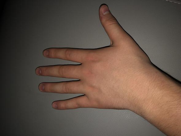 Dicke Hände? (Hand, Finger)