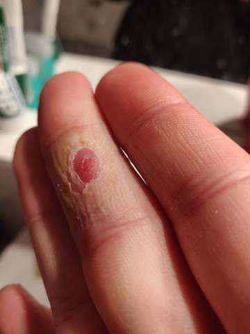 Dornwarze am Finger?
