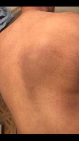 Dunkel blauer Fleck auf der rechten Rückenseite? Durchmesser wie eine Handfläche?