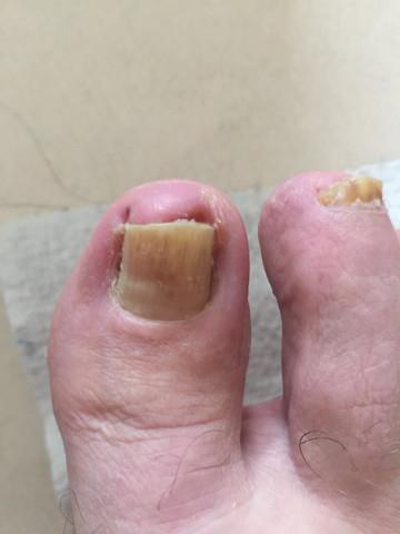 Eitriger Entzündung mit etwas Fußpilz des großen Fußzehen ?