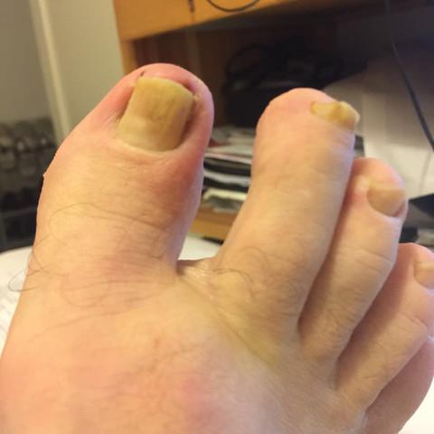 Fußzehe heut - (Fußpilz, Fußnagelentzuendung)