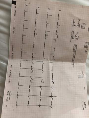 EKG - Sollte ich zum Kardiologen?
