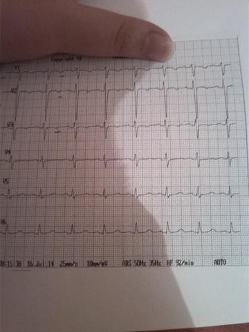 teil 2 - (Herz, EKG)