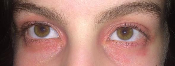 Meine Augen - (Haut, Augen, Allergie)