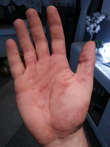 Hand 1 - (Allergie, Ekzem, Hausstauballergie)